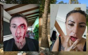 GUADELOUPE : APRÈS UNE AGRESSION LESBOPHOBE, LE SUSPECT IMMÉDIATEMENT RELÂCHÉ